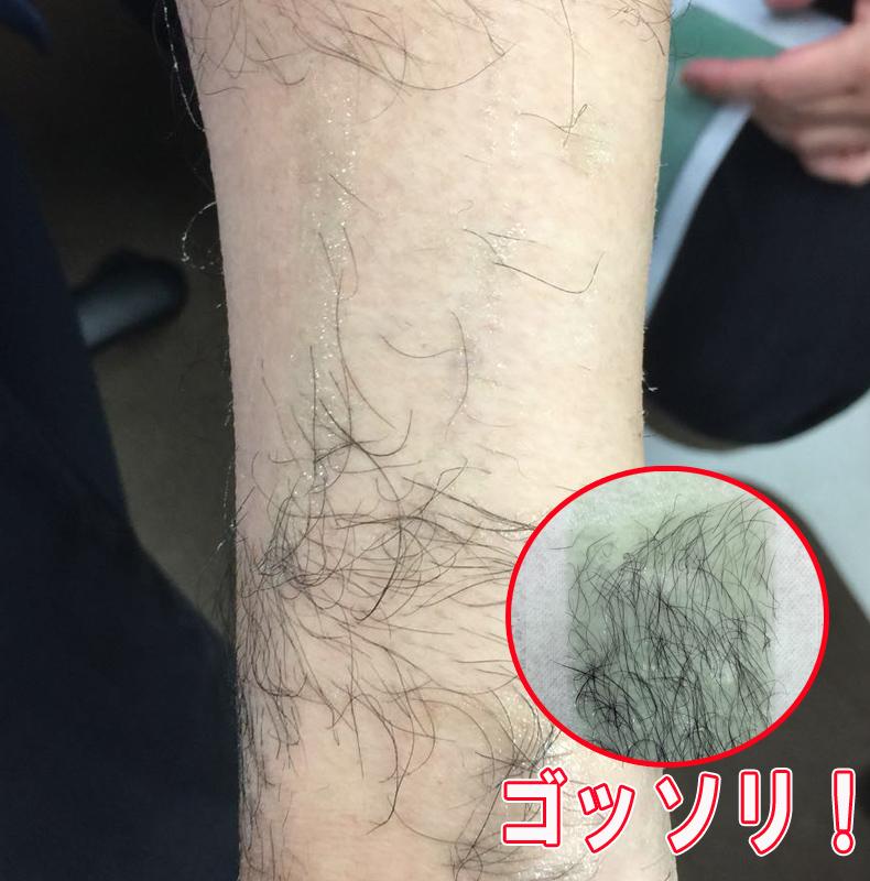 ブラジリアンワックス脱毛シート MUDAGE ZERO forBody【40枚入】